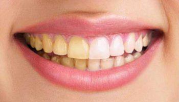 Пожълтяване на зъбите – каква е причината